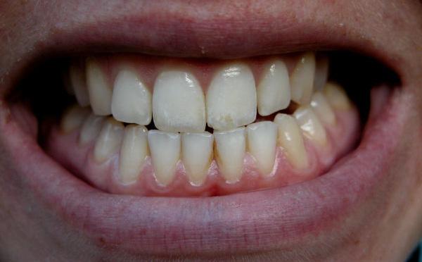 Большие зубы у человека что это